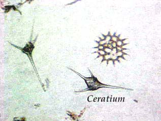 Ceratium Under Microscope Labeled